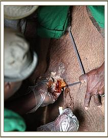 Cleaning Ishanga's wounds